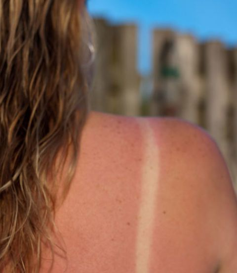 woman sunburned