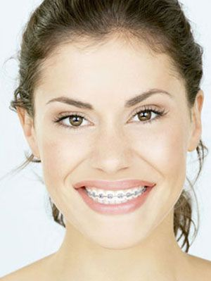 How to Afford Braces - The Cheapest Teeth-Straightening