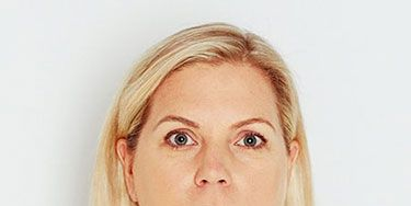 """<p>""""My complexion is dull and my lips are disappearing.""""</p> <p>DIANE DURANDO, 44</p> <p><strong>What's really happening</strong></p> <p>""""As your skin loses elasticity with age, facial features droop and lips thin,"""" says makeup artist Laura Geller. Diane's sensitive skin looked washed out without the help of makeup to create contour.</p>"""